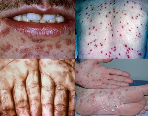 Các triệu chứng bệnh giang mai ở nam giới