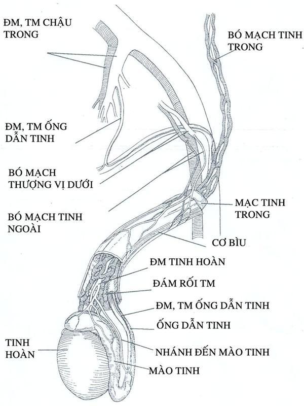 Giãn tĩnh mạch thừng tinh có gây vô sinh? 1