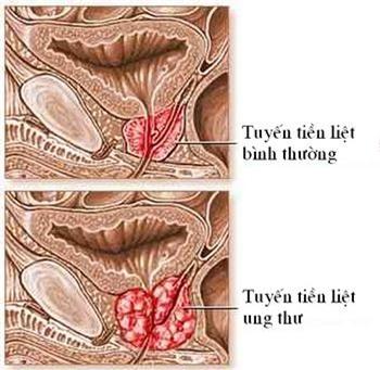 Nguyên nhân gây ra triệu chứng xuất tinh đau 2