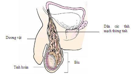 Triệu chứng giãn tĩnh mạch thừng tinh 1