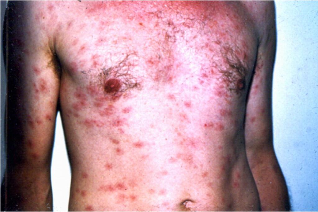 6 bệnh lây qua đường sinh dục phổ biến