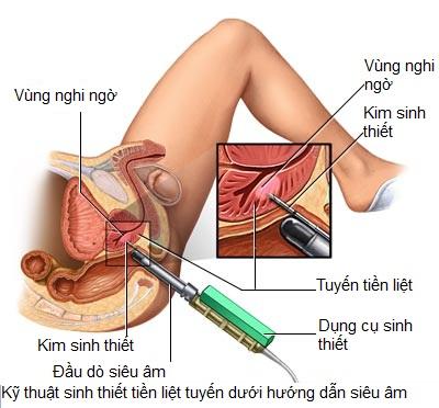 Chẩn đoán bệnh tuyến tiền liệt ở nam giới 2