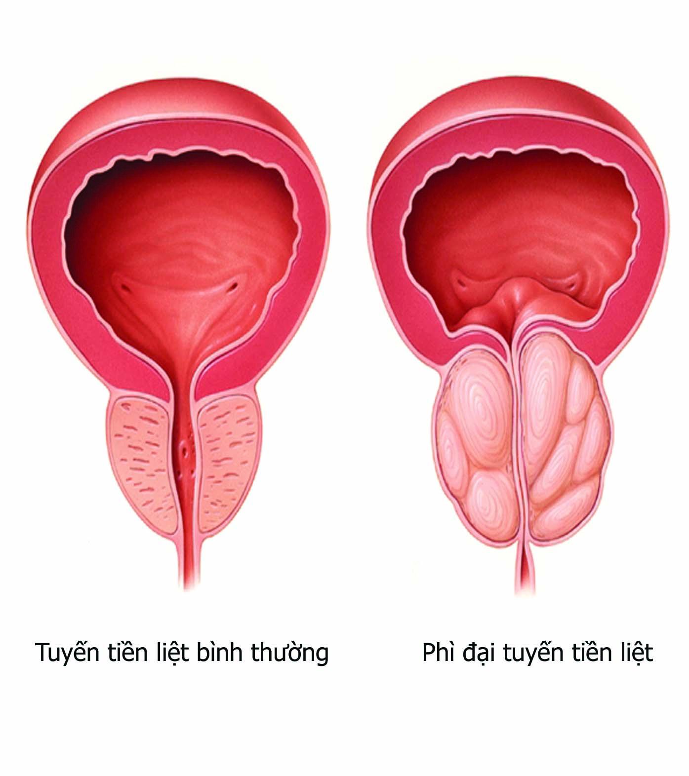 Điều trị phì đại tuyến tiền liệt ở nam giới 1