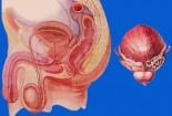 Mổ u xơ tiền liệt tuyến – những điều cần biết