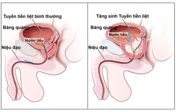 Những điều nam giới cần biết về viêm tuyến tiền liệt 1