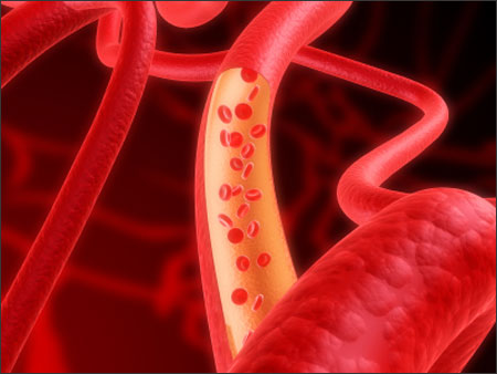 Những điều nam giới cần biết về viêm tuyến tiền liệt 3