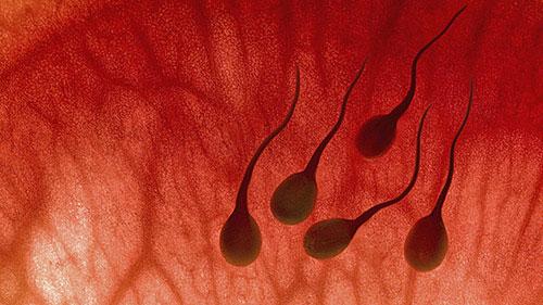 Những triệu chứng xuất tinh ra máu ở nam giới 1