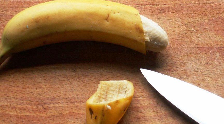 Phương pháp cắt bao quy đầu nào tốt nhất?
