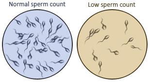 Tinh trùng màu trắng trong có làm sao không? 2