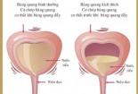 Điều trị viêm bàng quang cấp ở nam giới