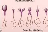 Kiểm tra chất lượng tinh trùng như thế nào?