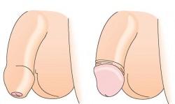 Nam giới có nên cắt bao quy đầu không?
