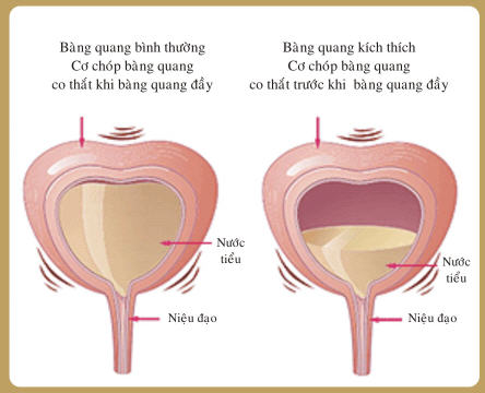tiểu rắt tiểu buốt ra máu 2