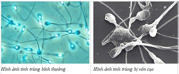 tinh trùng vón cục như thạch 1