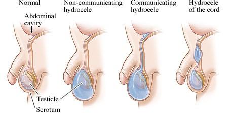 Triệu chứng tràn dịch màng tinh hoàn 1