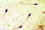 anh-huong-cua-chlamydia-den-tinh-trung 2