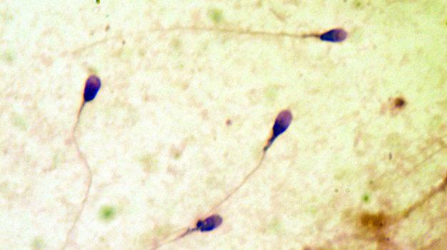 Ảnh hưởng của chlamydia đến tinh trùng 2