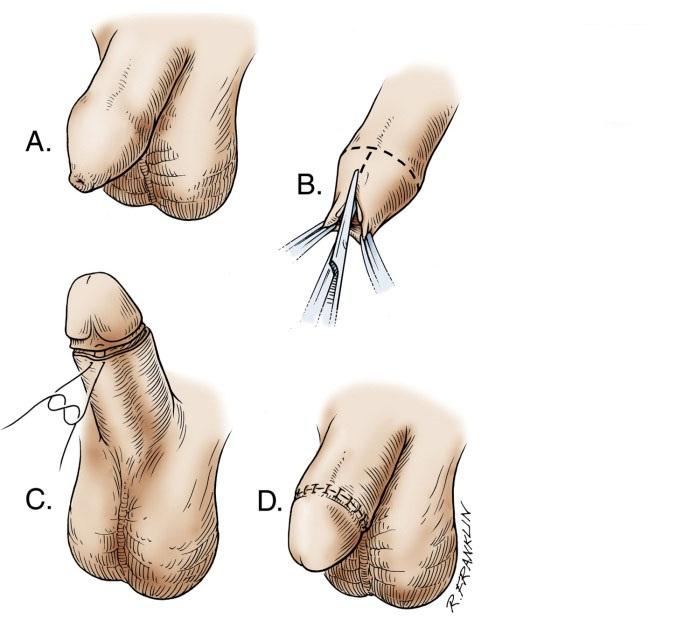 Sau khi cắt bao quy đầu cần chú ý những gì?