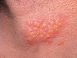 Bệnh herpes trên da