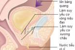 Tiểu nhiều có thể liên quan đến nhiều bệnh 1