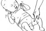 Tràn dịch màng tinh hoàn ở trẻ sơ sinh