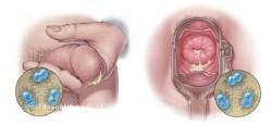 Khả năng gây chảy mủ niệu đạo 1