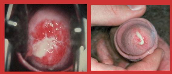 Khả năng gây chảy mủ niệu đạo 2