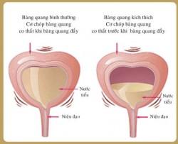 Nam giới chớ chủ quan khi bị tiểu buốt và ra máu sau khi quan hệ