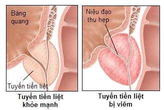 Triệu chứng và cách phòng tránh bệnh viêm tuyến tiền liệt