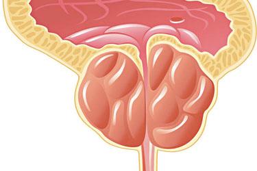 Nhận biết tuyến tiền liệt tăng sinh phì đại như thế nào?