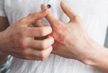 Bệnh lậu có gây ngứa không