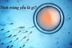 Tinh trùng yếu: kẻ thù đáng sợ gây vô sinh ở nam giới