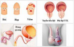 bao quy đầu gây viêm nhiễm bộ phận sinh dục