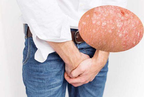 Ngứa vùng kín ở nam giới là bệnh gì