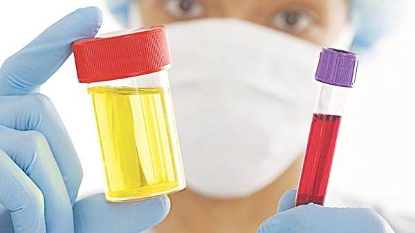 xét nghiệm tiểu ra máu